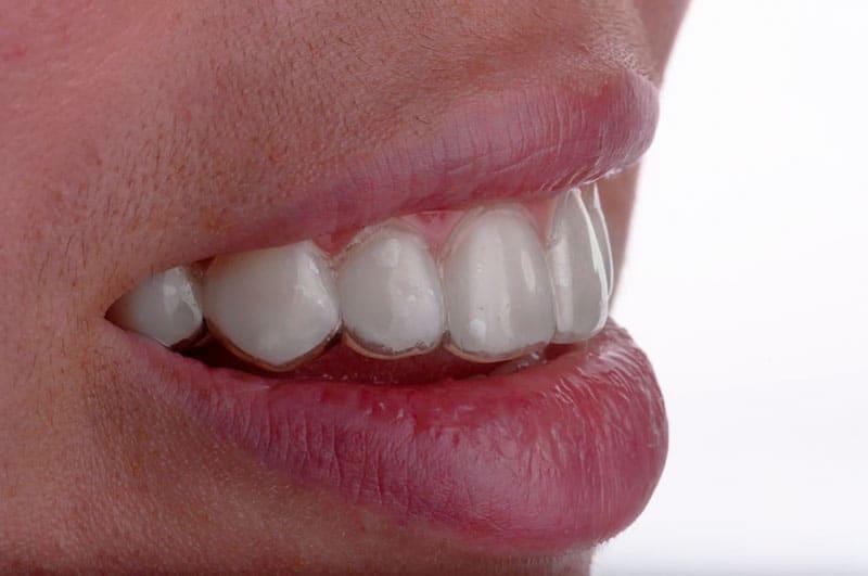 invisalign-ortodoncia-invisible-valencia