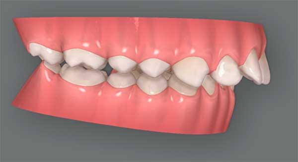 dientes-hacia-adelante-ortodoncia