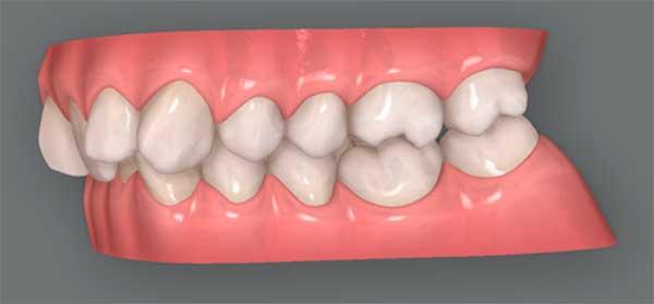 dientes-hacia-atras-ortodoncia