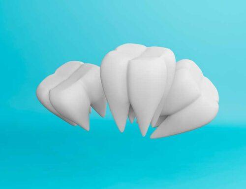 La importancia del modelo 3D de nuestra boca en ortodoncia