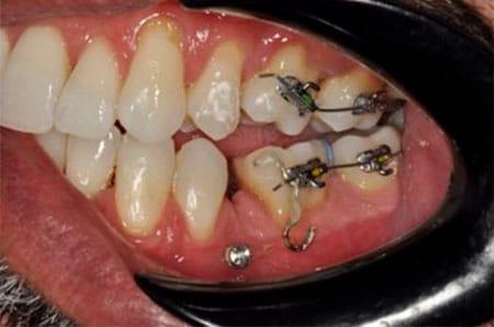 Enderezamiento de molares