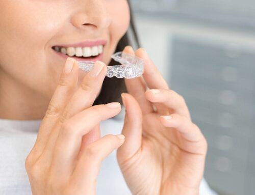 ¿Con qué aparato de ortodoncia va a ir más rápido tratamiento?